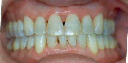 תמונה לאחר יישור השיניים מוצלח