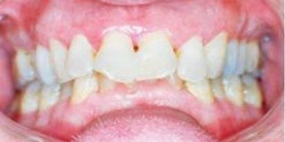 לפני ישור שיניים מוצלח במרפאת גזית
