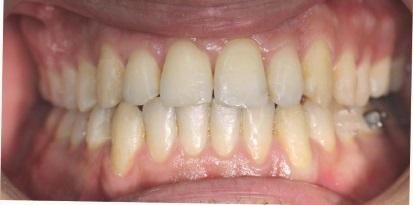 תמונה אחרי יישור שיניים בגשר