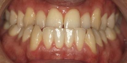 לפני יישור שיניים בגשר