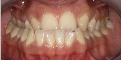 תמונה לפני שיישרה שיניים במרפאה ברמת גן