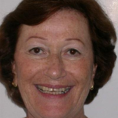 טיפול לתיקון השיניים בגיל מבוגר