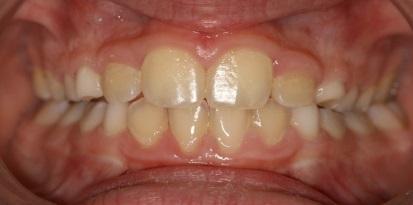 אחרי גשר לשיניים במרפאת גזית שבמרכז