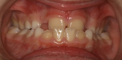 תמונה שיניים לפני יישור לילדים