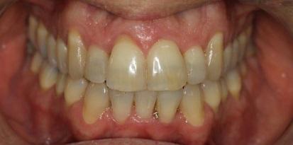 ריבועים לשיניים - אחרי