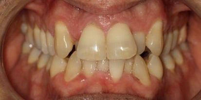 לפני ריבועים לשיניים