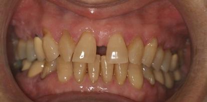 תמונה לפני יישור של השיניים מוצלח לגיל מבוגר