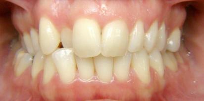 שימוש בטבעות לשיניים