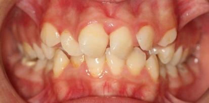 לפני יישור השיניים בפלטות