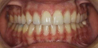 אחרי ריבועים לשיניים