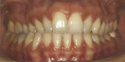 לפני שימוש בריבועים לשיניים