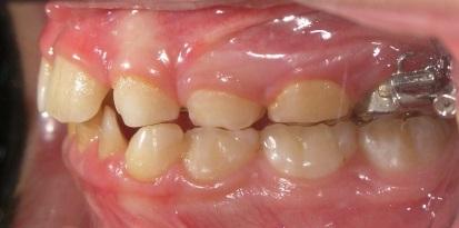 אחרי תיקון מנשך צלבי בשיניים