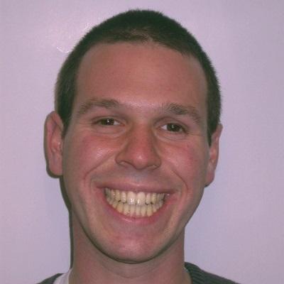 חיוך לאחר טיפול אורתודונטי