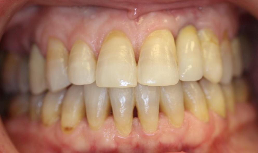 דוגמה ליישור שיניים מוצלח במבוגרים