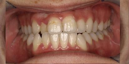 מרפאת גזית – רפפורט אורתודונטיה מומחים ליישור שיניים