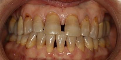מרפאת גזית - יישור שיניים לפני טיפול מוצלח במבוגרים