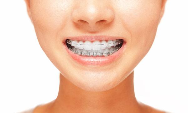 יישור שיניים עם גשר שקוף