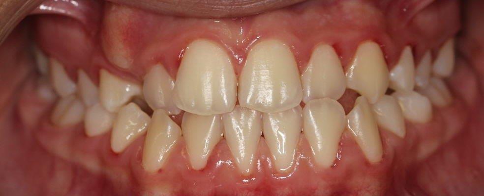 יולי לפני יישור שיניים