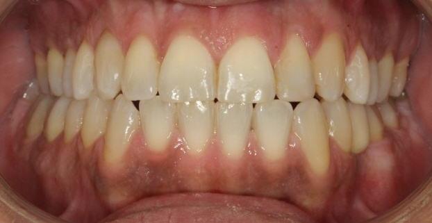 יישור שיניים - אחרי | יעקב