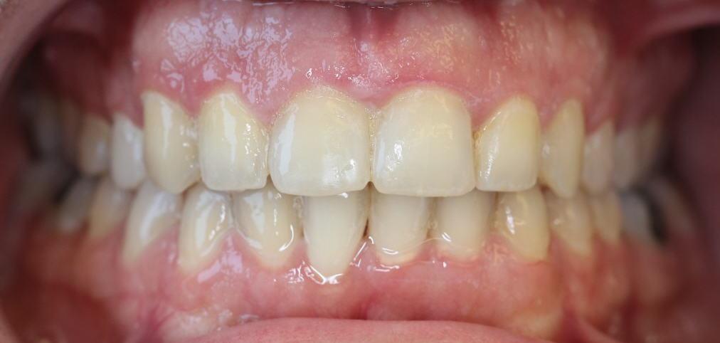 רון אחרי יישור שיניים