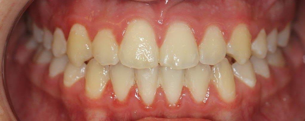 יולי אחרי יישור שיניים