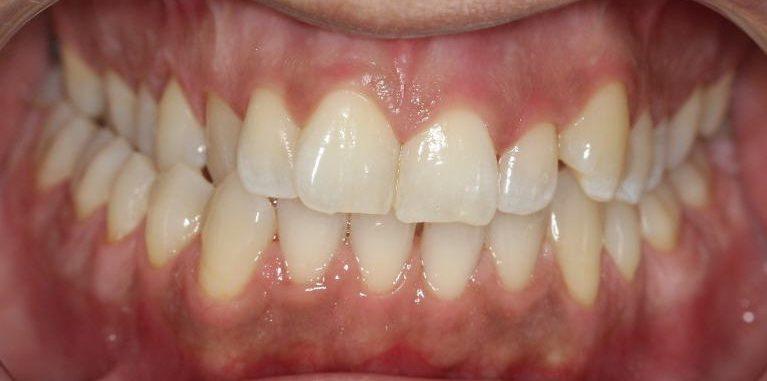 יישור שיניים - לפני | יעקב