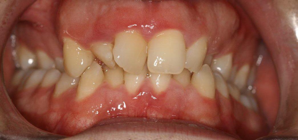 רון לפני יישור שיניים