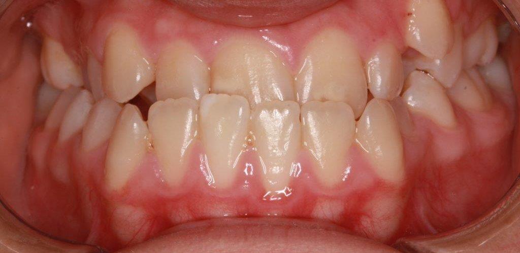 אלמוג לפני יישור שיניים