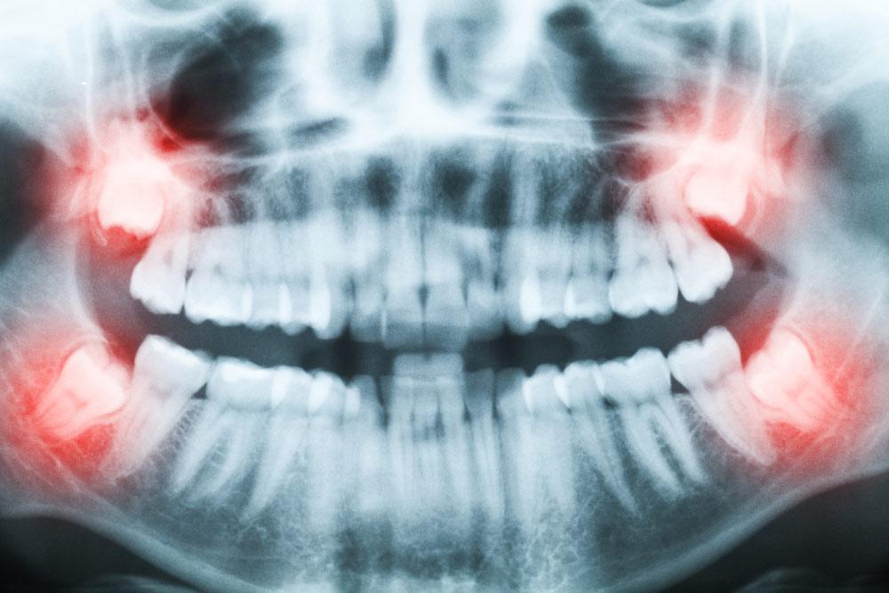 שיניים כלואות