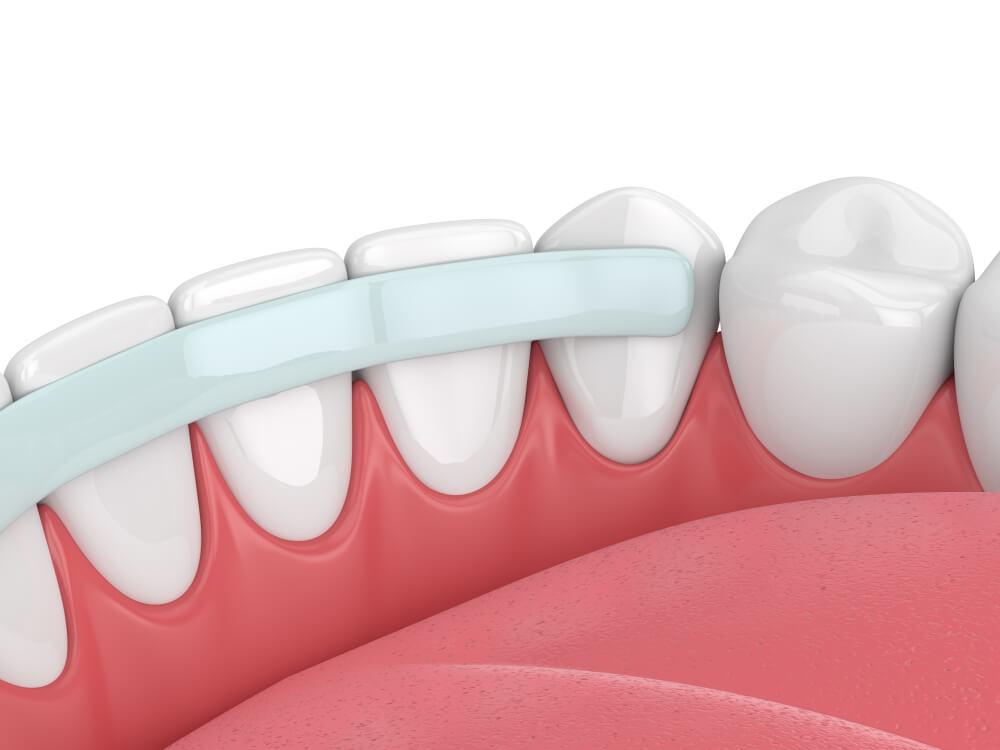 קיבוע בשיניים